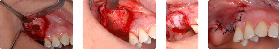 img-chirurgia2