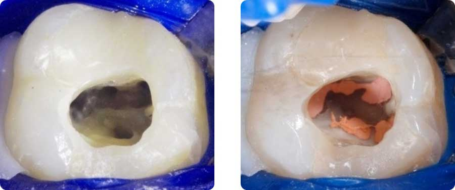 img-endodonzia2