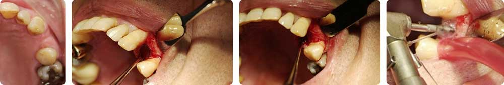 img-implantologia-3