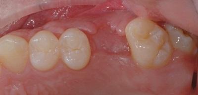 img-implantologia-5