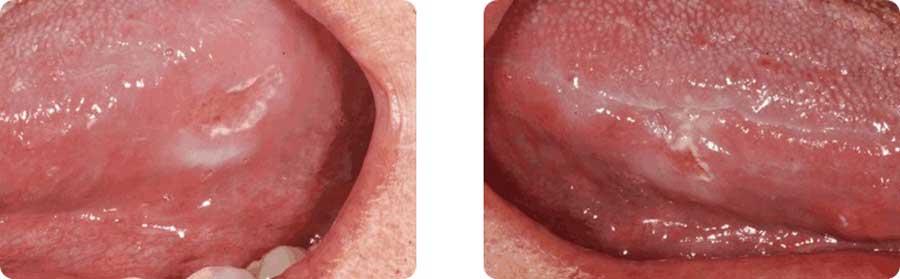 img-patologie8
