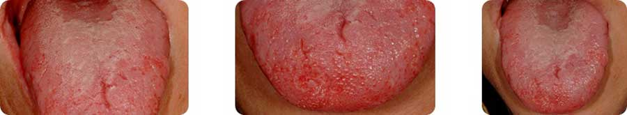 img-patologie9