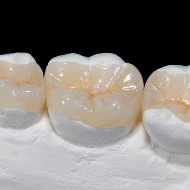 intarsio-dentale