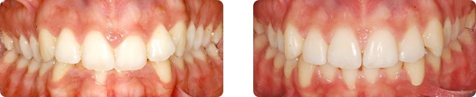 orizzontale_ortodonzia_caso_1