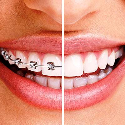 ortodonzia-minenna